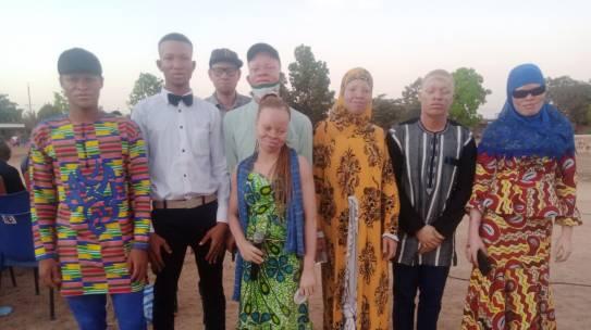 Burkina : La semaine artistique de l'association des femmes albinos a été un succès